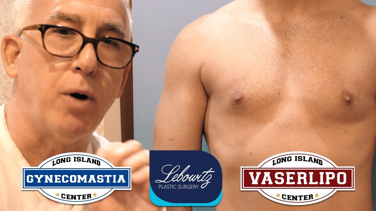 Vaser Facelift Of Male Breast Gynecomastia Revision Hi Def Vaser Liposculpture Surgery Inside Male Breast Gynecomastia Revision Hi Def Vaser Liposculpture Surgery Long island Ny by Dr Lebowitz