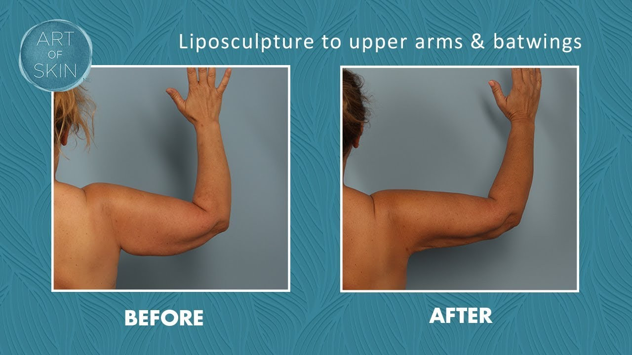 what is vaser liposuction of laser liposuction of upper arms and batwings youtube with laser liposuction of upper arms and batwings