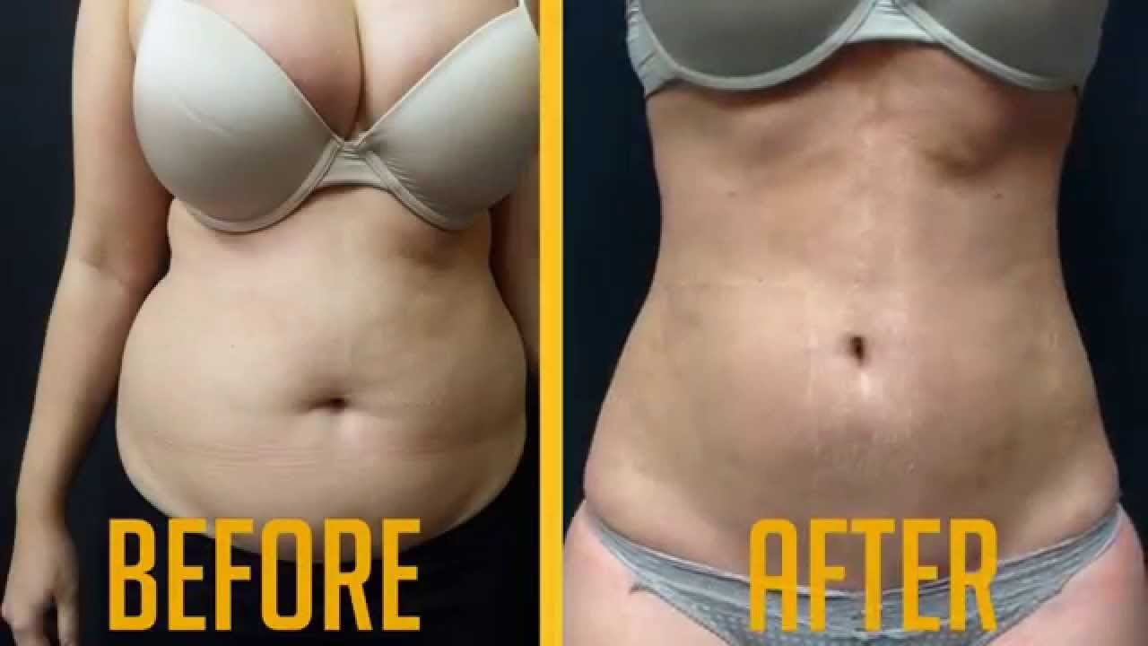 what is vaser liposuction of vaser liposuction female before after video advanced lipo centre pertaining to vaser liposuction female before after video advanced lipo centre youtube