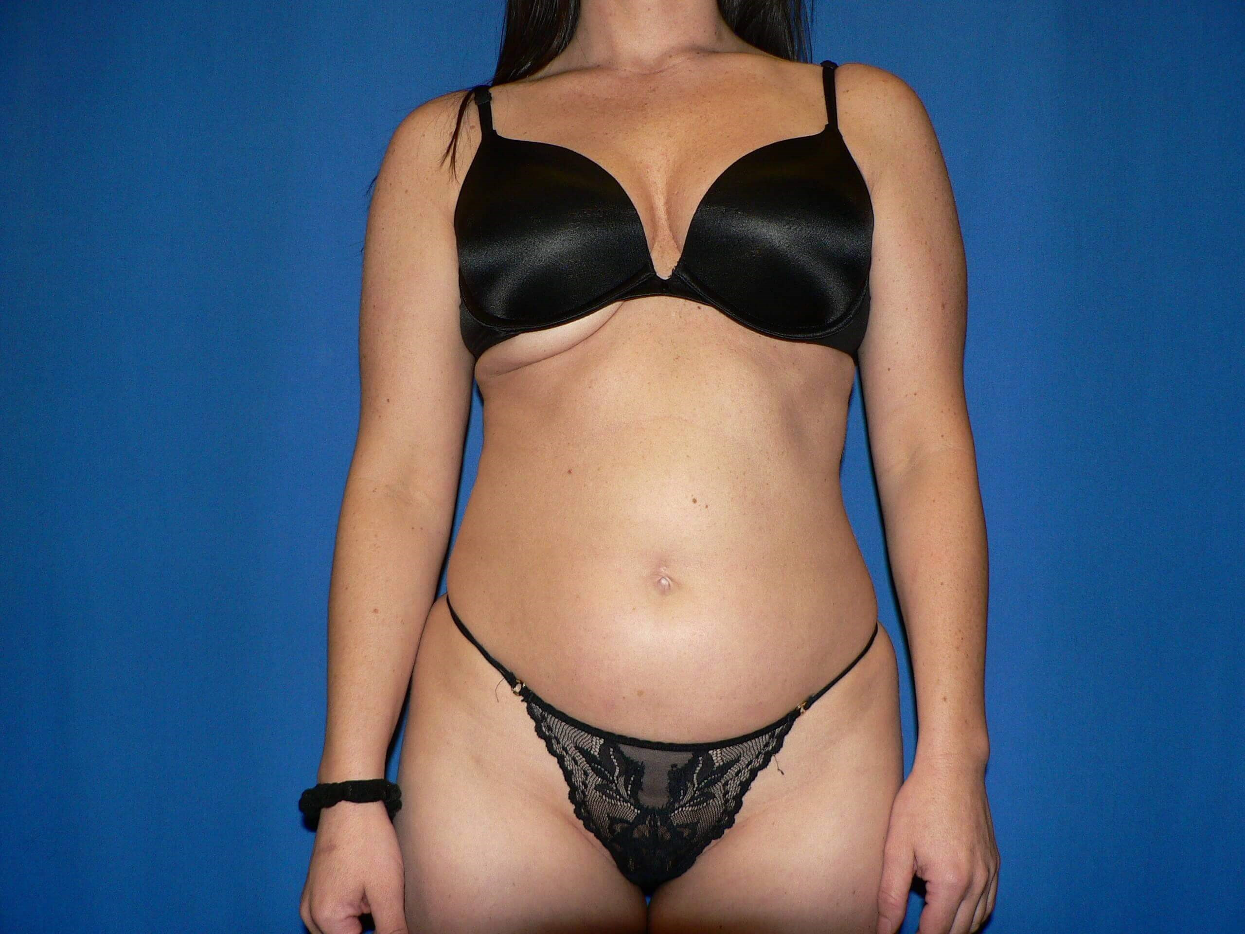 what is vaser liposuction of vaser liposuction used to remove excess fat on this denver woman in throughout liposuction denver vaser before