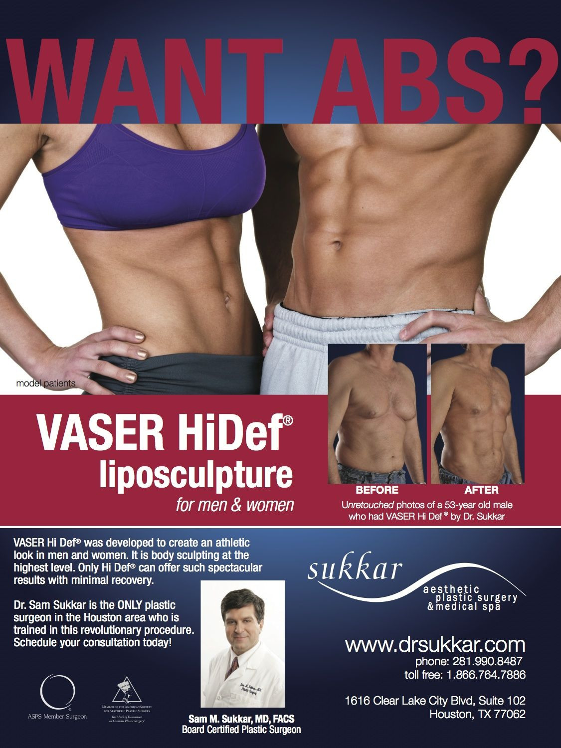 What is Vaser Liposuction Procedure Of Abs Vaser Hidef Pinterest Board Certified Plastic Surgeons Pertaining to Abs Vaser Hidef Pinterest Board Certified Plastic Surgeons Surgery and Tummy Tucks