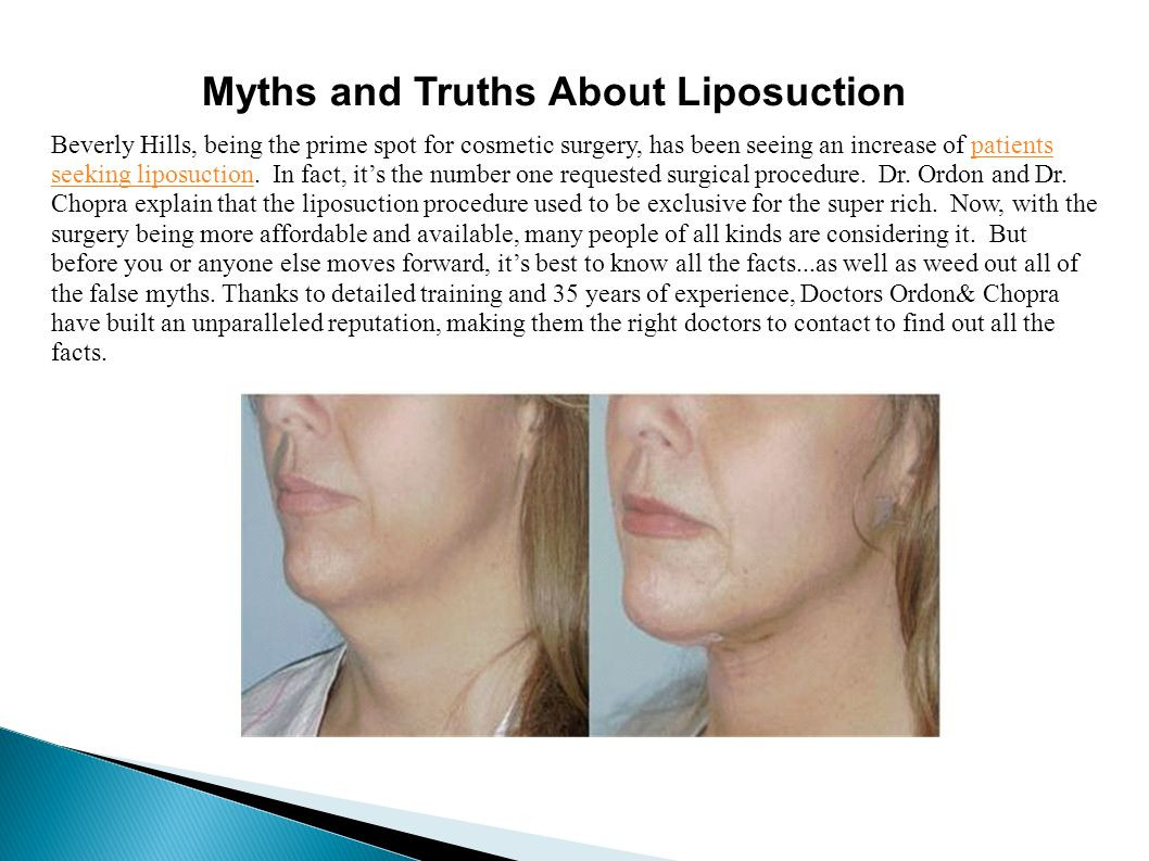 what is vaser liposuction procedure of myths and truths about liposuction beverly hills being the prime pertaining to myths and truths about liposuction beverly hills being the prime spot for cosmetic surgery has been seeing an increase of patients seeking liposuction